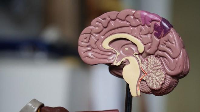 Các nhà khoa học sử dụng cấy ghép não để chữa bệnh trầm cảm nặng ở phụ nữ - Ảnh 2.