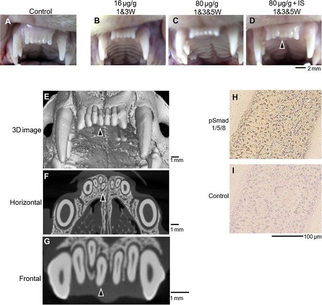 Nhật Bản: Nghiên cứu mới mở ra hy vọng phát triển thuốc mọc răng - Ảnh 2.