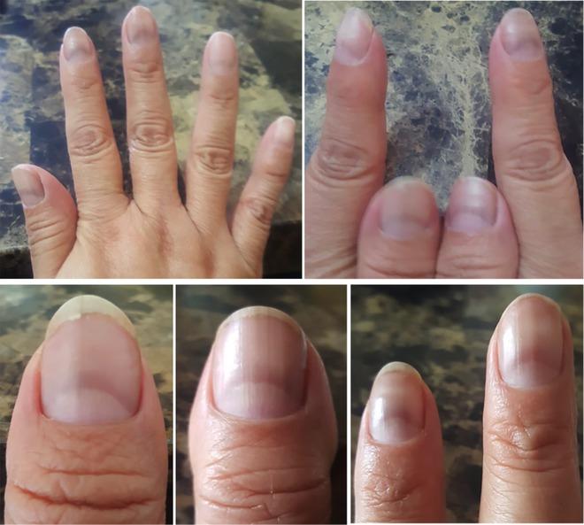 Nhiều bệnh nhân COVID-19 có vệt lõm này trên móng tay, liệu nó sẽ có ích trong việc sàng lọc bệnh? - Ảnh 3.