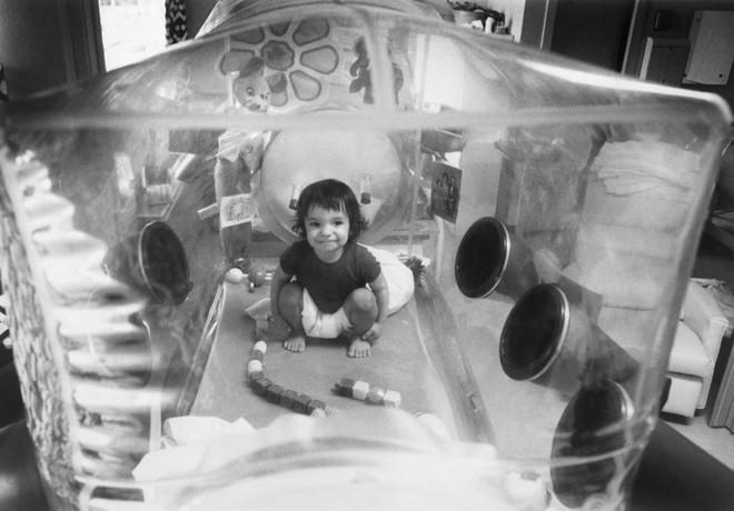 Giữa đại dịch của một virus, một virus đại dịch khác lại đang cứu sống những đứa trẻ bong bóng - Ảnh 2.