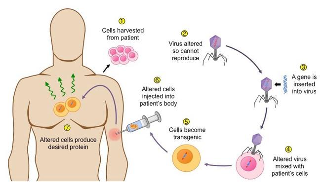 Giữa đại dịch của một virus, một virus đại dịch khác lại đang cứu sống những đứa trẻ bong bóng - Ảnh 7.