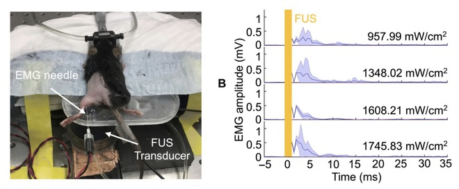 Các nhà khoa học tạo ra chip đơn nhỏ nhất thế giới, nằm gọn trong mũi kim để tiêm vào cơ thể - Ảnh 3.