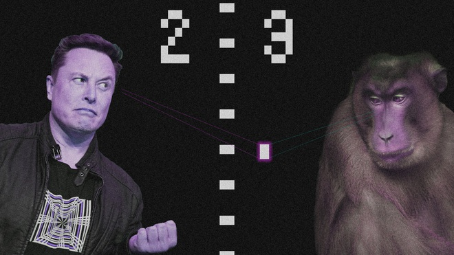 Người đàn ông bại liệt thách đấu con khỉ được cấy chip của Elon Musk bằng cuộc chiến ý nghĩ - Ảnh 1.
