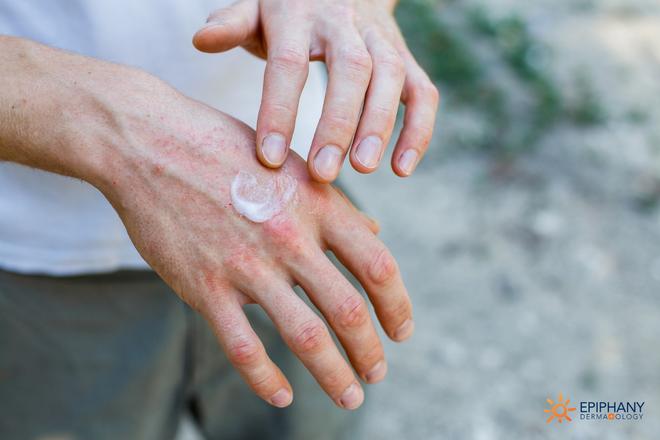 Bảo vệ mình trong đợt nắng kỷ lục để tránh những vết dày sừng tiền ung thư da - Ảnh 1.