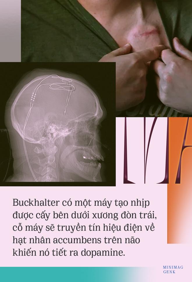 Người Mỹ đầu tiên được chữa khỏi nghiện ma túy bằng phẫu thuật não - Ảnh 17.