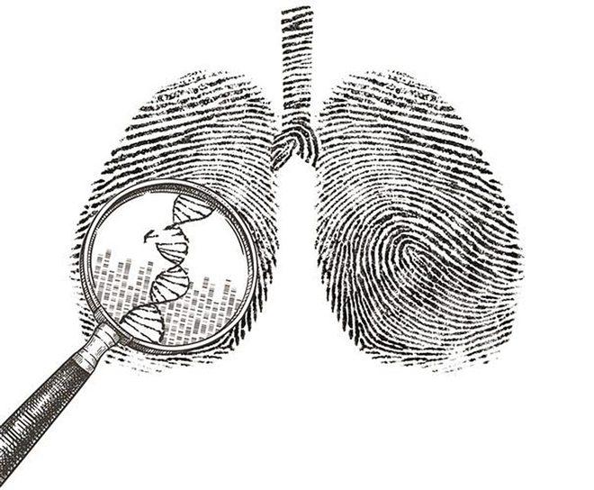Nghiên cứu mới tìm thấy 3 dạng ung thư phổi ở những người chưa bao giờ hút thuốc, có loại phát sinh sớm tới 10 năm - Ảnh 2.