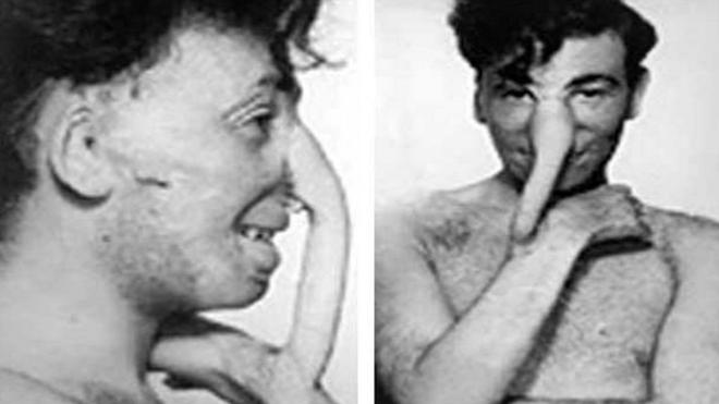 Câu chuyện bi thảm về hàng trăm phi công chuột lang trong thế chiến II và vị bác sĩ đã giúp họ tìm lại hình hài con người - Ảnh 4.