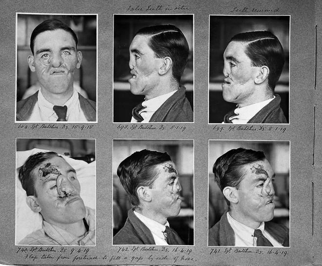 Câu chuyện bi thảm về hàng trăm phi công chuột lang trong thế chiến II và vị bác sĩ đã giúp họ tìm lại hình hài con người - Ảnh 1.
