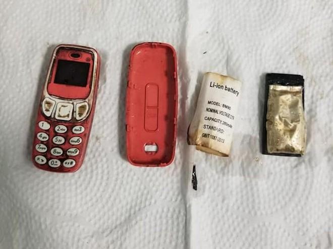 Sợ bị phát hiện, tù nhân nuốt luôn... Nokia 3310 vào bụng - Ảnh 2.