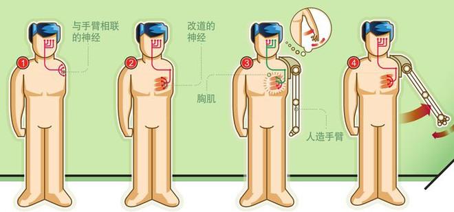 Trong tương lai, con người đều có thể trở thành những cyborg hay không? - Ảnh 4.