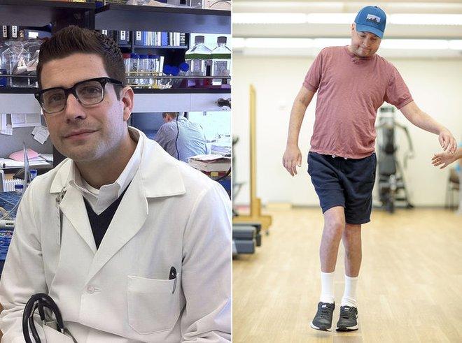 Wartman năm 2011 (bên trái) và hiện tại khi một bên hông bị hoại tử khiến chân anh ngắn lại vài cm (bên phải)