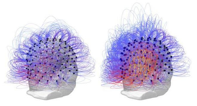 Tín hiệu trong não bộ người đàn ông trước (bên trái) và sau (bên phải) khi thực hiện liệu pháp - mô phỏng điện não đồ