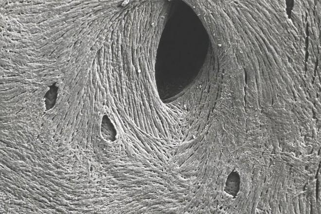 Bề mặt của xương khi nhìn dưới một kính hiển vi