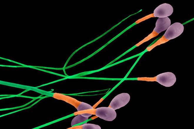 Tinh trùng ở người có 3 nhiễm sắc thể không có khả năng thụ thai