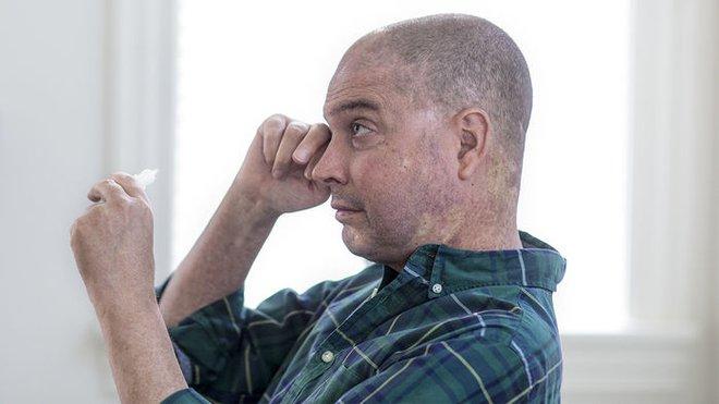 GVHD khiến Lukas Wartman phải nhỏ nước mắt nhân tạo mỗi 20 phút một lần