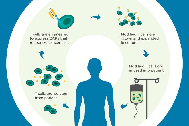 Mô tả quá trình điều trị ung thư bằng liệu pháp miễn dịch CAR-T