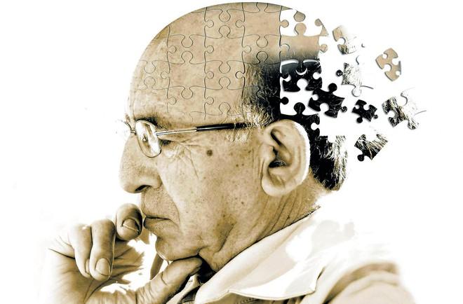 Bill Gates đầu tư 100 triệu USD cho cuộc chiến chống lại căn bệnh Alzheimer - Ảnh 1.