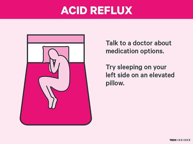 9 phương pháp khoa học giúp bạn khỏi mất ngủ cả thanh xuân - Ảnh 8.