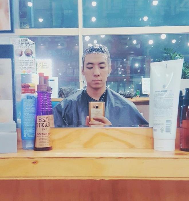 Chết cười với anh chàng Hàn Quốc bị dị ứng thuốc nhuộm tóc, đầu sưng to như quả bóng bay - Ảnh 1.