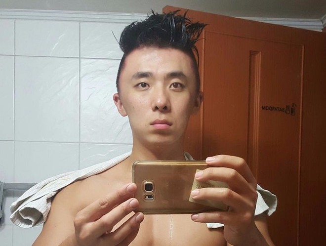 Chết cười với anh chàng Hàn Quốc bị dị ứng thuốc nhuộm tóc, đầu sưng to như quả bóng bay - Ảnh 7.