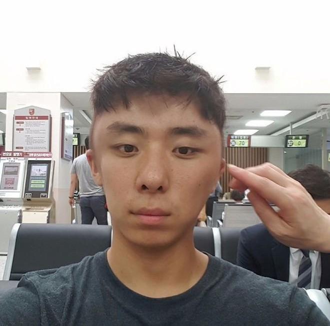 Chết cười với anh chàng Hàn Quốc bị dị ứng thuốc nhuộm tóc, đầu sưng to như quả bóng bay - Ảnh 9.