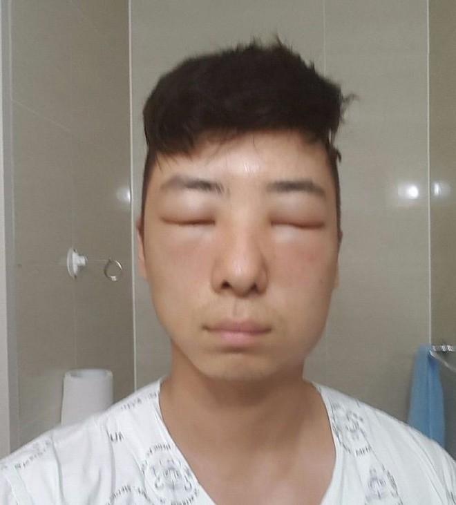 Chết cười với anh chàng Hàn Quốc bị dị ứng thuốc nhuộm tóc, đầu sưng to như quả bóng bay - Ảnh 15.