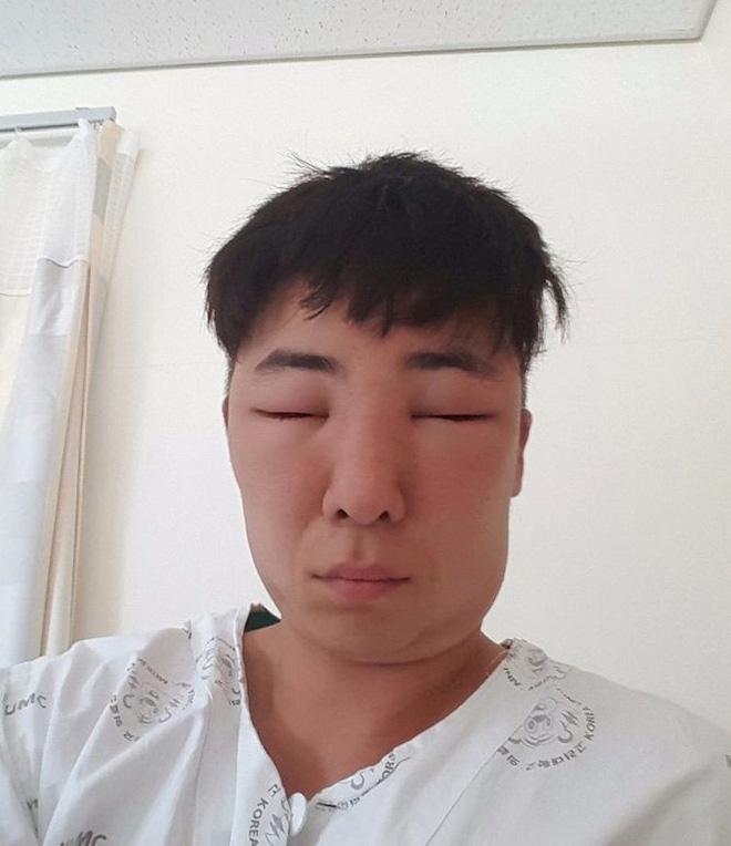 Chết cười với anh chàng Hàn Quốc bị dị ứng thuốc nhuộm tóc, đầu sưng to như quả bóng bay - Ảnh 16.
