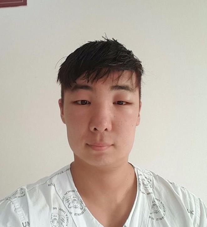 Chết cười với anh chàng Hàn Quốc bị dị ứng thuốc nhuộm tóc, đầu sưng to như quả bóng bay - Ảnh 19.