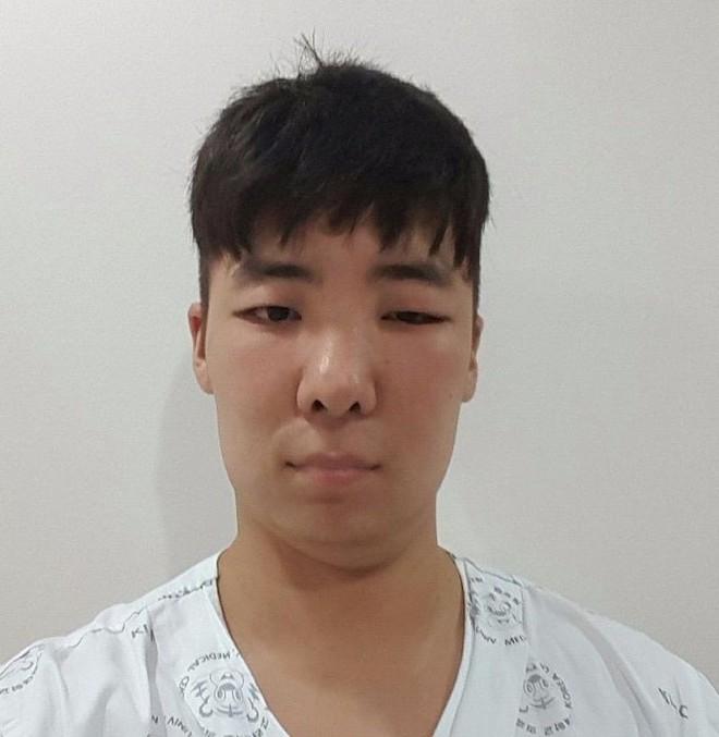 Chết cười với anh chàng Hàn Quốc bị dị ứng thuốc nhuộm tóc, đầu sưng to như quả bóng bay - Ảnh 20.