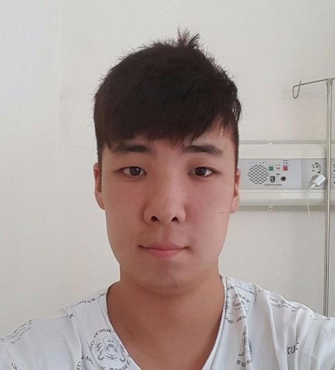 Chết cười với anh chàng Hàn Quốc bị dị ứng thuốc nhuộm tóc, đầu sưng to như quả bóng bay - Ảnh 22.