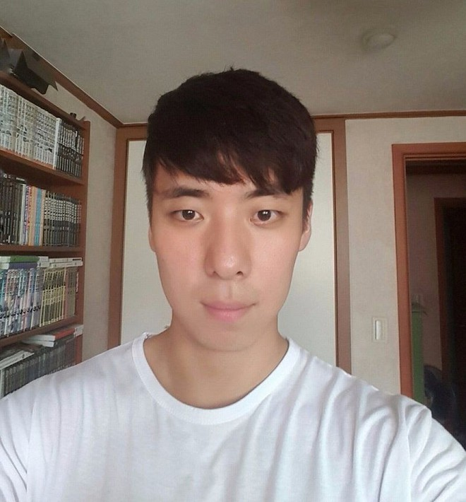 Chết cười với anh chàng Hàn Quốc bị dị ứng thuốc nhuộm tóc, đầu sưng to như quả bóng bay - Ảnh 23.