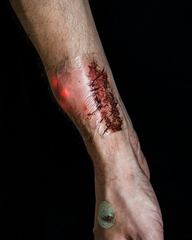 """Cánh tay một người sau khi cấy ghép thiết bị mang tên """"Ngôi sao phương Bắc 1.0""""."""