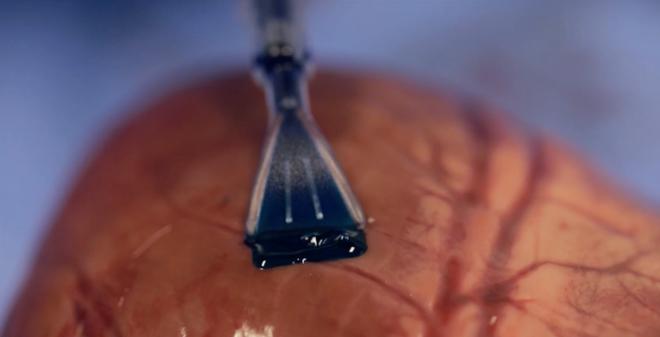 Vật liệu polyme đang được Maria Pereira được quét lên vết rách trên một quả tim