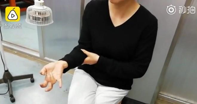 Người phụ nữ Trung Quốc suýt liệt tay vì cầm khư khư smartphone cả tuần liền - Ảnh 2.