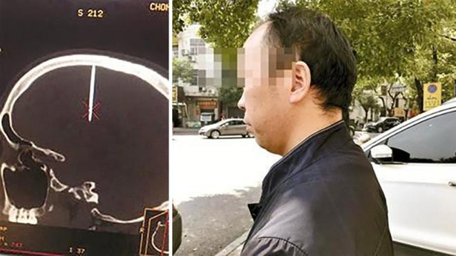 Nhập viện vì đau đầu không rõ lý do, người đàn ông Trung Quốc mới biết cây đinh dài 4,8cm đã cắm vào hộp sọ - Ảnh 1.