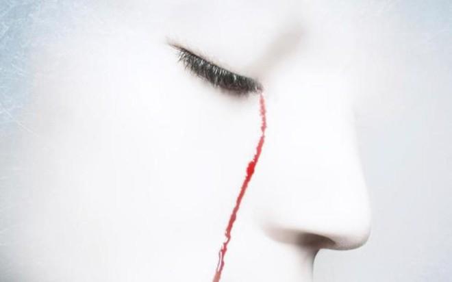 Mắc chứng bệnh kỳ lạ, người đàn ông Italia khóc ra máu khiến các bác sĩ cũng phải lúng túng - Ảnh 1.
