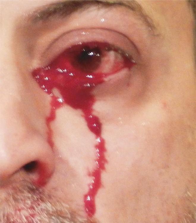 Mắc chứng bệnh kỳ lạ, người đàn ông Italia khóc ra máu khiến các bác sĩ cũng phải lúng túng - Ảnh 2.