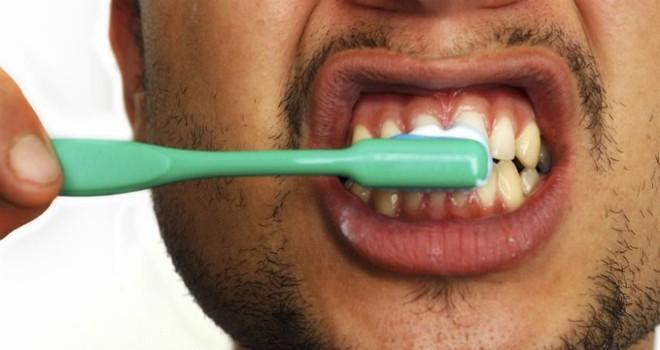 Răng của bạn có đốm trắng kỳ lạ này? Đây là lý do chúng xuất hiện - Ảnh 2.