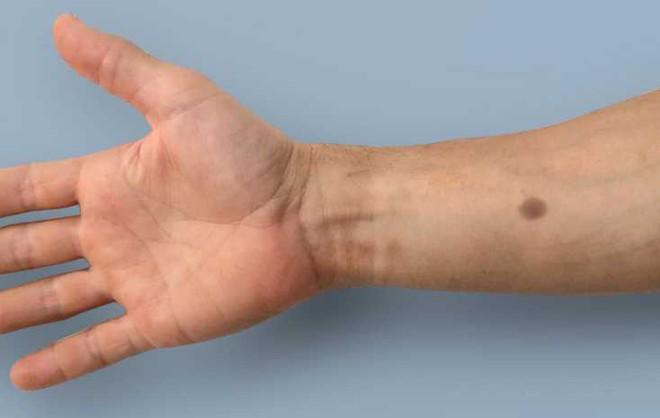 Phương pháp cấy ghép sinh học này sẽ làm xuất hiện nốt ruồi nhân tạo khi phát hiện có ung thư - Ảnh 1.