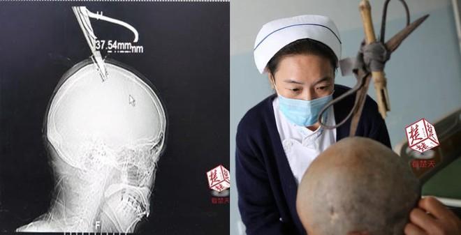 Bị chiếc kéo cắm vào đầu, người phụ nữ Trung Quốc vẫn bình tĩnh tự bắt xe bus đến bệnh viện - Ảnh 1.