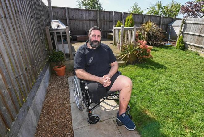 Người đàn ông đang làm vườn thì nhện cắn, 2 ngày sau phát bệnh rồi bị cưa mất một chân - Ảnh 1.