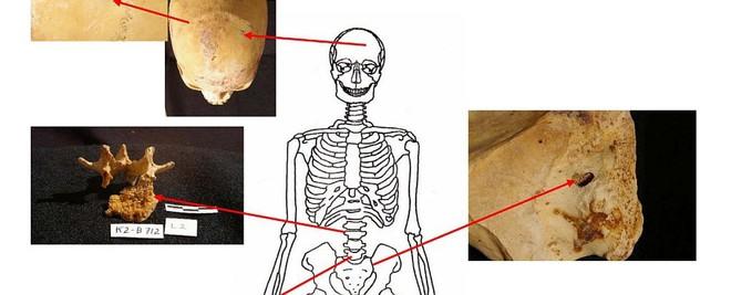 Người Ai Cập cổ đại có tỷ lệ mắc ung thư thấp hơn 100 lần so với chúng ta ngày nay - Ảnh 2.