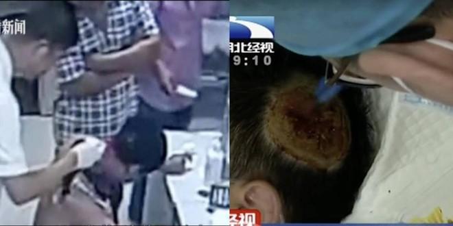 Trung Quốc: Sạc dự phòng để dưới gối bất ngờ phát nổ, thổi bay mảng da đầu của người đàn ông đang ngủ - Ảnh 2.