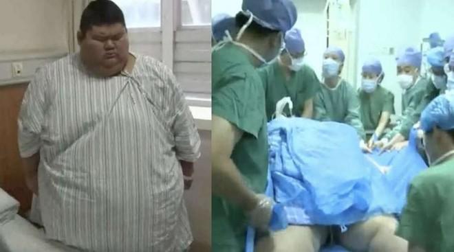 Trung Quốc: Cắt bỏ 4/5 dạ dày để giảm cân, chàng béo 334kg quyết tâm trở thành huấn luyện viên thể hình - Ảnh 2.