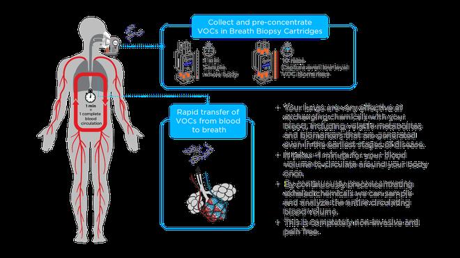 Các nhà khoa học Anh đang thử nghiệm một cỗ máy phát hiện ung thư trong hơi thở - Ảnh 2.