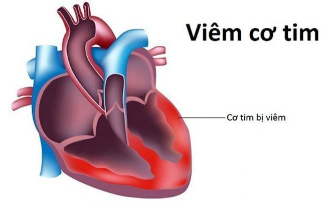 Kết quả điều tra 2 ca tử vong do virus viêm cơ tim và phản ứng của các bác sỹ trước tin đồn liên quan - Ảnh 1.