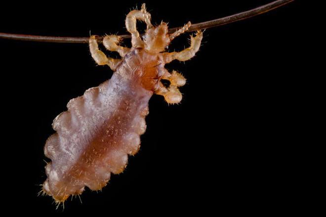 Halloween dưới ống kính hiển vi: 13 tấm ảnh chụp những sinh vật khiến bạn sởn gai ốc - Ảnh 3.