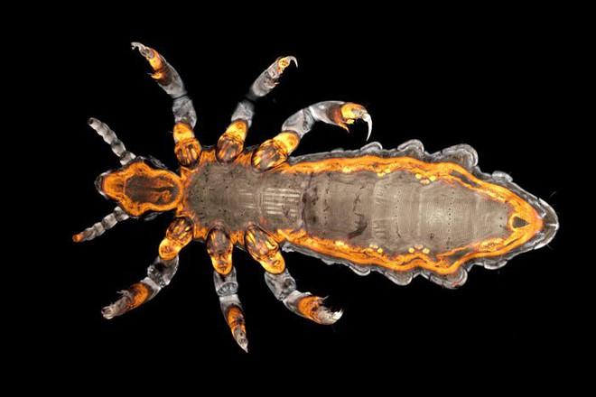 Halloween dưới ống kính hiển vi: 13 tấm ảnh chụp những sinh vật khiến bạn sởn gai ốc - Ảnh 4.