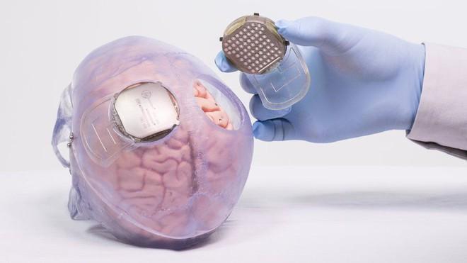 Nhờ bộ ngoại xương - exoskeleton điều khiển bằng sóng não, người đàn ông liệt từ vai xuống đã có thể đi lại được - Ảnh 3.