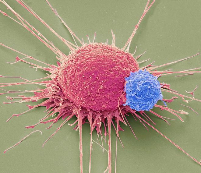 Tiêm vi khuẩn vào khối u để giết chết ung thư: Thử nghiệm cho kết quả đầy hứa hẹn - Ảnh 3.